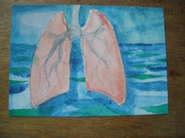 Carte Répresentation Du Timbre      Anti TB  Miki Jacobsen, Tuberculose - Groenland