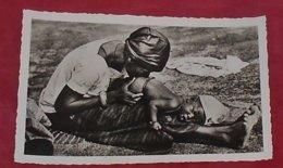 Niger - Bébé Recevant Un Lavement Au Piment ::::: Portraits  ------ 504 - Niger