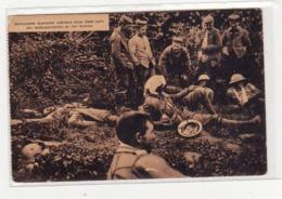 Verwundete Australier Waehrend Einer Rast Nach Der Gefangennahme An Der Somme - War 1914-18