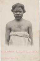 S. O. MADAGASCAR - Types Malgaches - Un Ancien Esclave Bara. - Madagascar