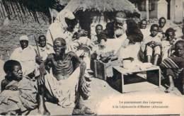 Ethiopie - Le Pansement Des Lépreux à La Léproserie D'Harar, Abyssinie - Etiopía