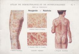 Santé - Fiche Dermatologie Et Syphiligraphie - Edité Par Deschiens - Rougeole Et Rubéole - Health