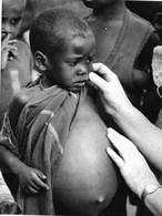 Photo Somalie Lugh Ganana Enfant Atteint De Kwashiorkor Photo Vivant Univers. - Africa