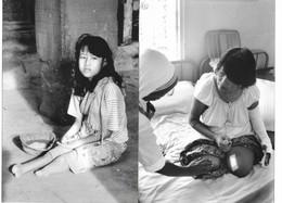 Photos (2 Attachées) Cambodge Victimes Des Mines 'anti-personnel Photo Vivant Univers - Places