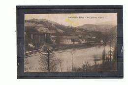 01 - CHANAY - Vue Générale Du Parc  - 3562 - Otros Municipios