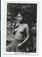 Viet Nam , Dalat , Beauté Moiesse , Jeune Fille Seins Nus - Vietnam