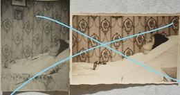 Photo X5 POST MORTEM + ANTE MORTEM Belgium Circa 1925 Young Woman - Photographs