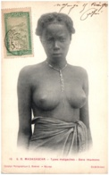 MADAGASCAR - Types Malgaches - Bara Imamono - Seins Nus - Madagaskar
