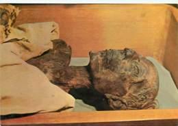 Egypte - Le Caire - Cairo - Musée Archéologique - Antiquité Egyptienne - Mummy Of King Ramses II - XIXe Dynastie 1340 Av - Musées