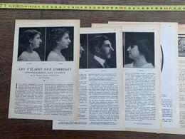 1918 JST VILAINS NEZ CORRIGES CHIRURGICALEMENT SANS CICATRICE JULIEN BOURGUET AS DES AS GUYNEMER ALBERT HALL - Alte Papiere