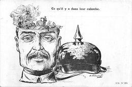 Ce Qu'il Y A Dans Leur Caboche - Kaiser Wilhelm II Guillaume - Trépanation - Cathédrale De Reims - Guerre 1914-18 - Humor