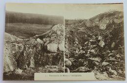 CPA WW1 Guerre 14-18 Avec 2 Vues De Vauquois Entonnoirs De Mines - Guerre 1914-18