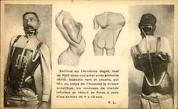 SANTE - Carte Postale - La Scoliose - L 66405 - Health