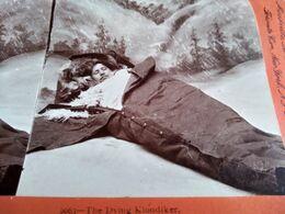 PHOTO STÉRÉO De B.L. Singley En 1898 - Pionnier Du Klondike Mourant - The Dying Klondiker - Post Mortem - TBE - Stereoscopic