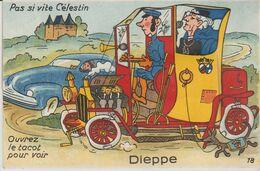 76 DIEPPE ( Pas Si Vite Celestin Ouvrez Le Capot Vous Verrez ) - Móviles (animadas)