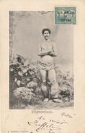 Eléphantiasis. (carte écrite Par Un Marin à Colombo... Parti De Tahiti Voici 40 Jours.)) - Tahiti